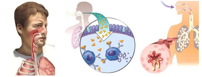 alerjik-rinitle-birlikte-gorulen-hastalikalr