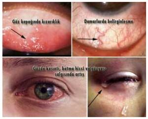 alerjik-konjunktivit